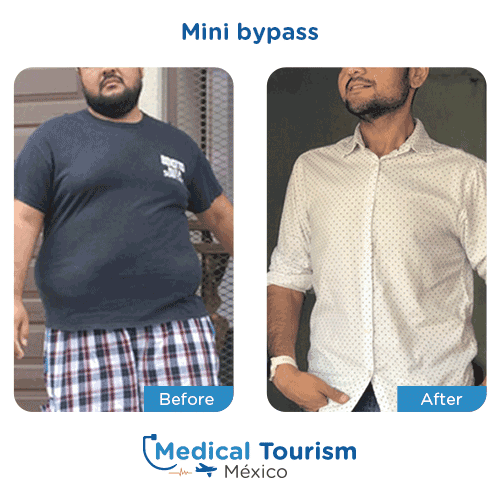 Patient before and after bariatric mini bypass