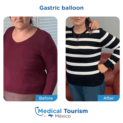 Patient before and after bariatric gastric balloon