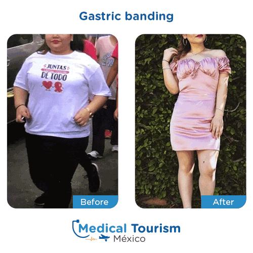 Patient before and after bariatric gastric band