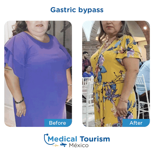 Patient before and after bariatric gastric bypass