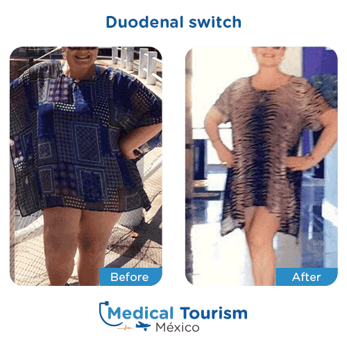 Patient before and after bariatric duodenal switch