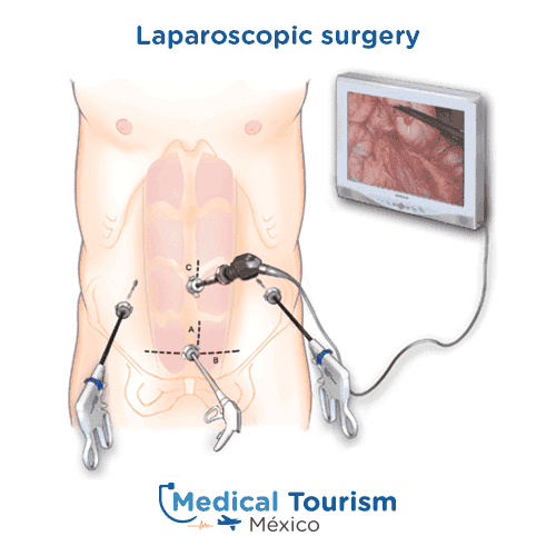Illustrative image of laparoscopic surgery