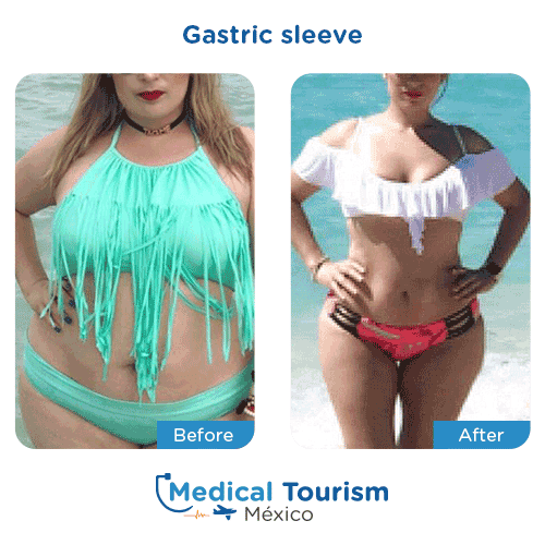 Patient before and after bariatric gastric sleeve