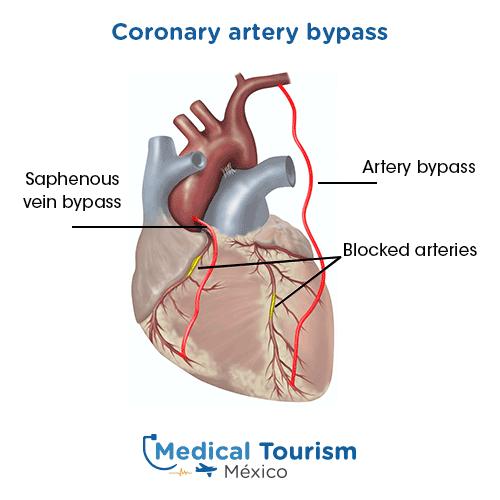 Illustrative image of Coronary artery bypass