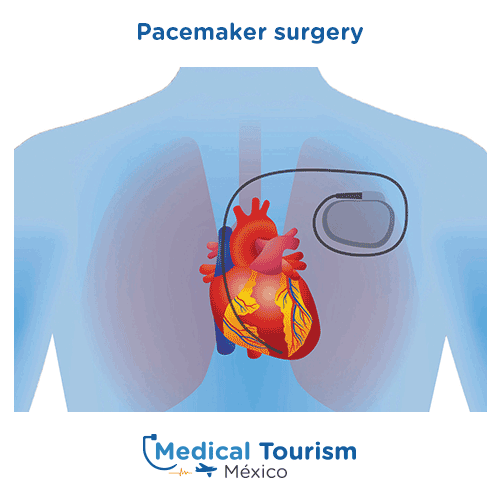 Illustrative image of Pacemaker surgery