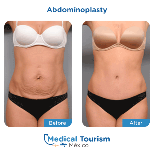 Patient before and after tummy tuck surgery