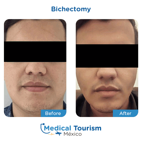 ad-plastic-surgery-bichectomy-mobil-medical-tourism