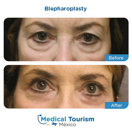 Patient before and after blepharoplasty surgery