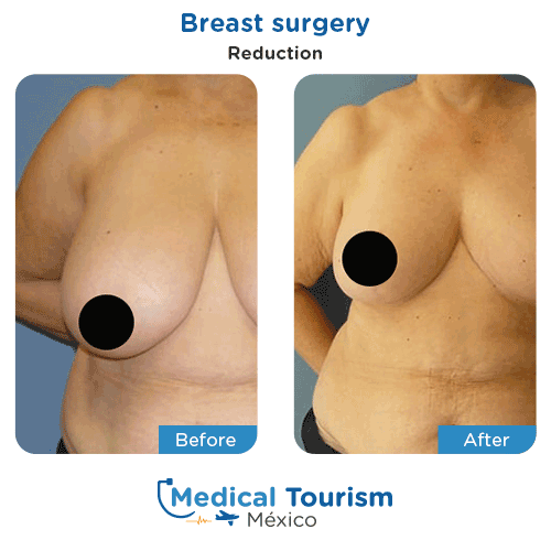 Patient before and after breast surgery