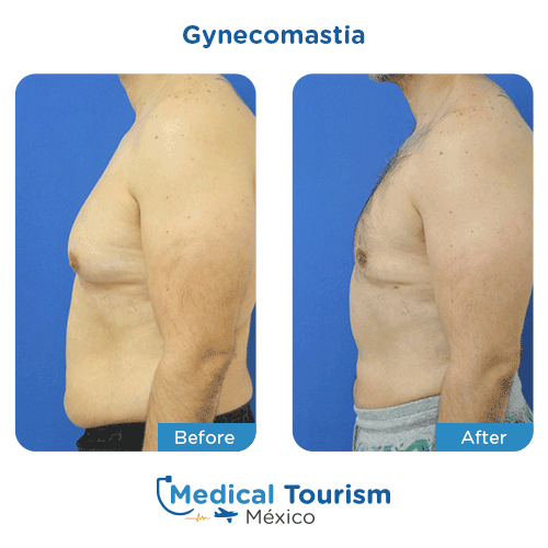Patient before and after gynecomastia surgery