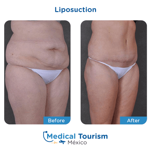 Patient before and after Liposuction
