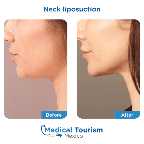 Patient before and after neck liposuction