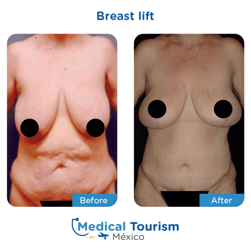 Patient before and after breast lift surgery