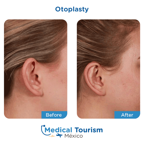 Patient before and after ear surgery