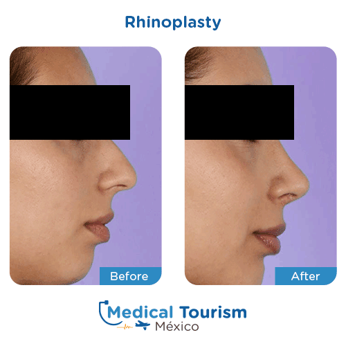 Patient before and after nose surgery