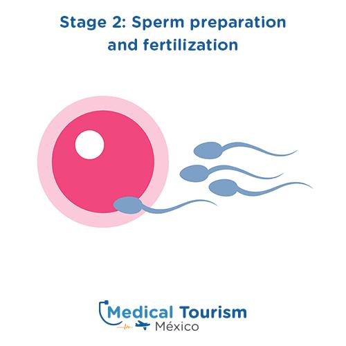 Illustrative image of In vitro fertilization