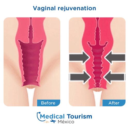 Illustrative image of Vaginal rejuvenation
