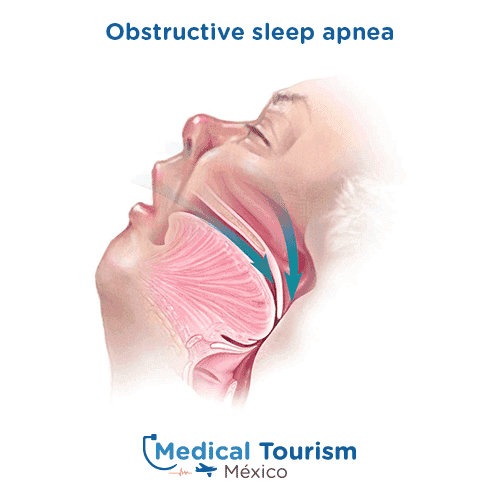 Obstructive sleep apnea illustrative image