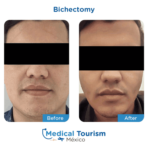 Patient before and after Bichectomy