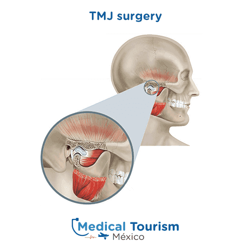 TMJ surgery illustrative image