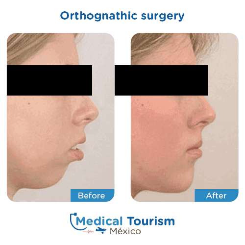 Patient before and after jaw surgery