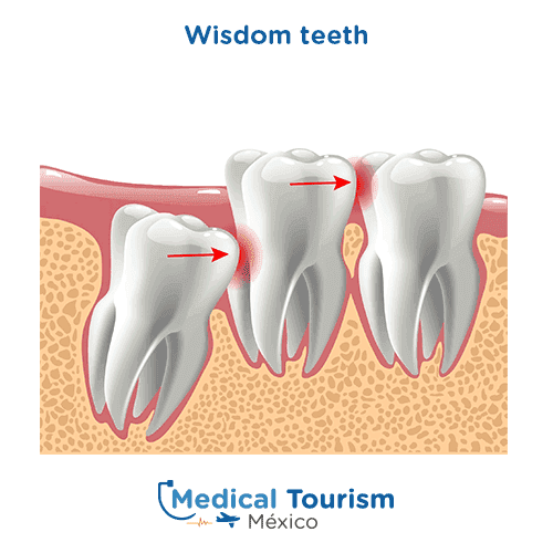 Wisdom teeth imapct illustrative image