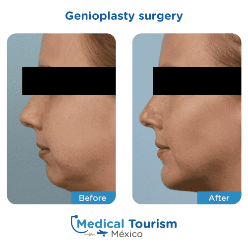 Patient before and after chin surgery
