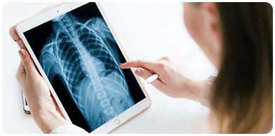 Doctor holding a tablet with a full x-ray
