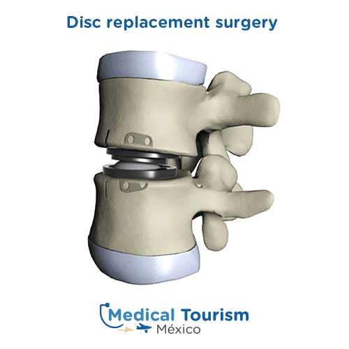 Illustrative image of Disc replacement surgery
