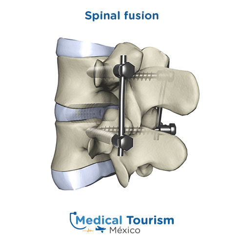 Illustrative image of Spinal fusion