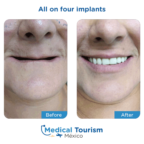 Patient before and after all on four implants