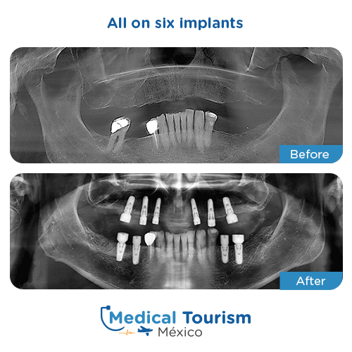 Patient before and after all on six implants