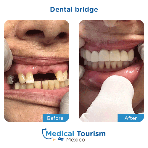 Patient before and after dental bridge