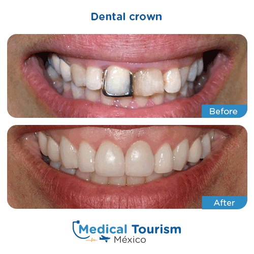 Patient before and after dental crown