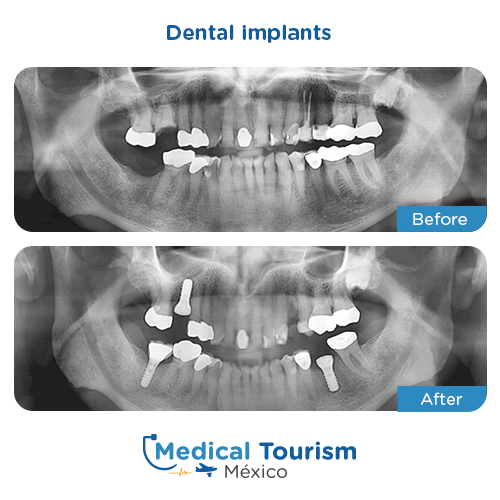 Patient before and after dental implant