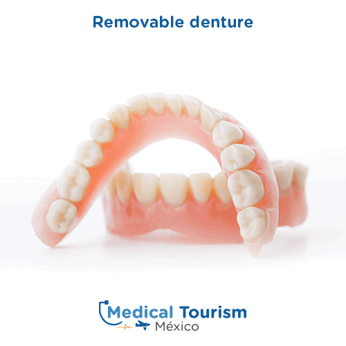 Illustrative image of a removable denture