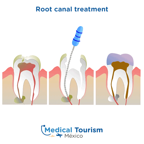 Illustrative image of a root canal