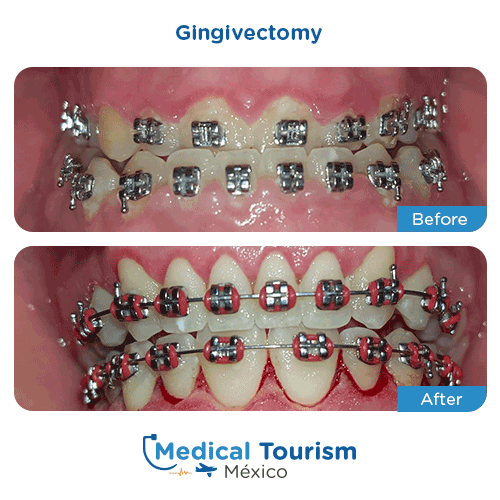 Patient before and after dental services