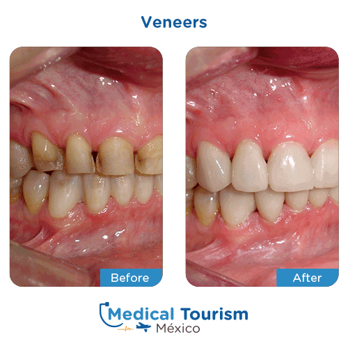 Patient before and after dental veneers