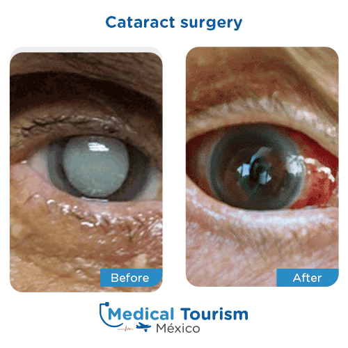 Patient before and after cataract surgery