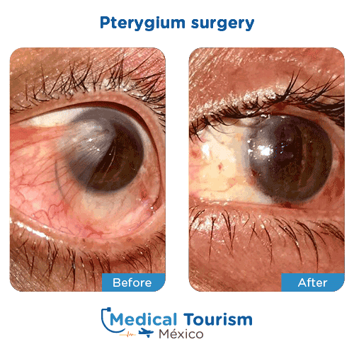 Patient before and after pterygium surgery