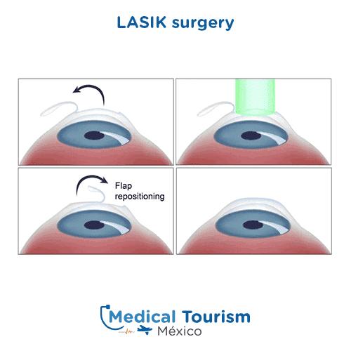 Lasik suregery illustrative image