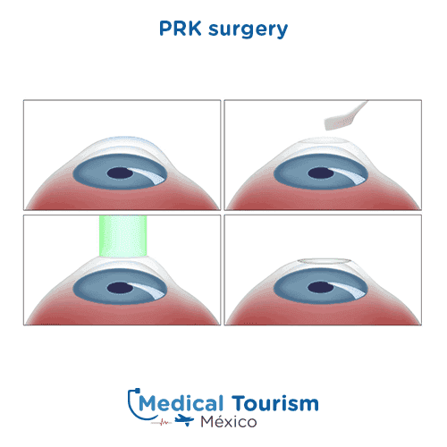 PRK surgery illustrative image