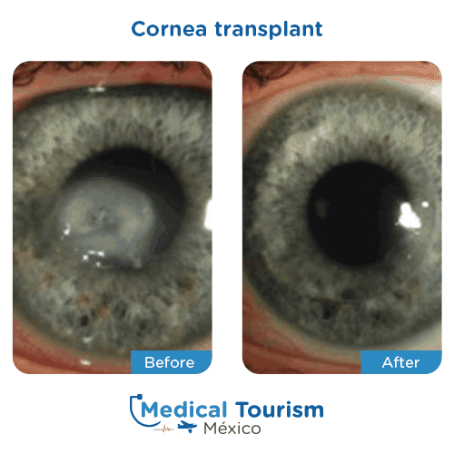 Patient before and after glaucoma surgery