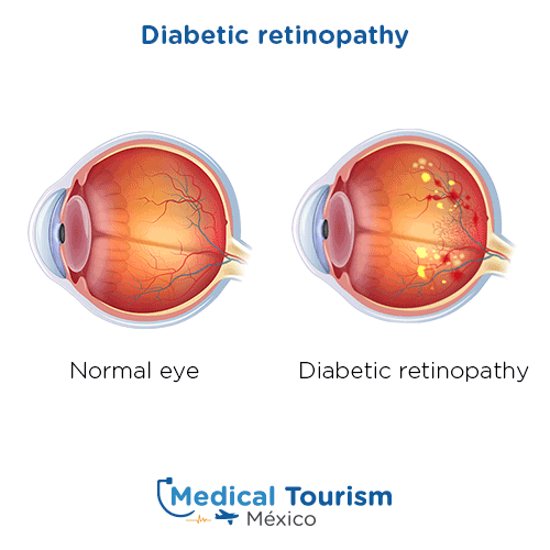 Illustrative image of a diabetic eye