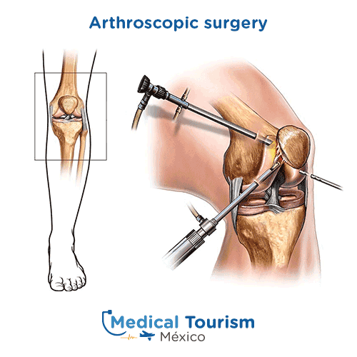 Illustrative image of arthroscopy surgery