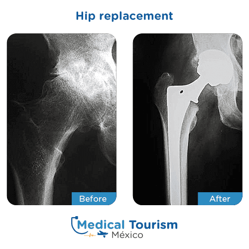 Patient before and after hip replacement