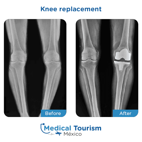 Patient before and after Knee replacement
