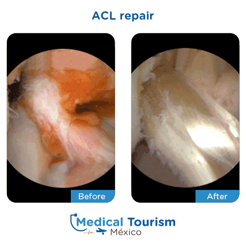 Patient before and after acl repair