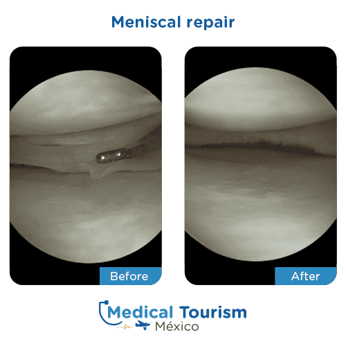 Patient before and after meniscal repair